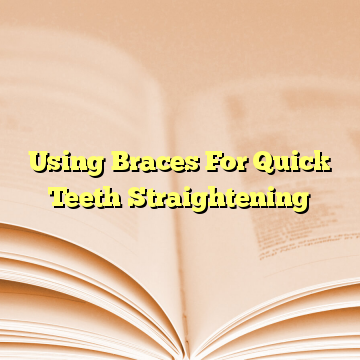 Using Braces For Quick Teeth Straightening
